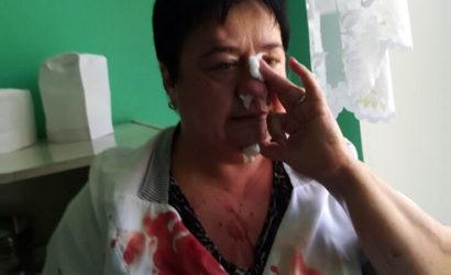 Сотрясение мозга, сломан нос: В детской больнице Краматорска родители избили медработника (Фото)